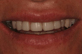 לפני ציפוי אסתטי לשיניים