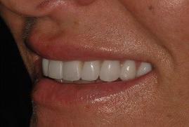 אחרי ציפוי אסתטי לשיניים