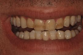 לפני הלבנת שיניים
