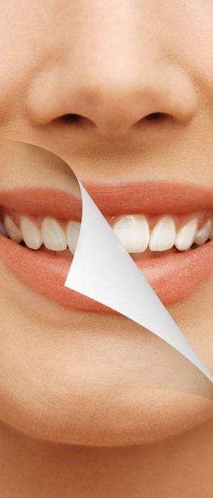 תמונה שממחישה ביצוע שינוי בשיניים והענקת מראה לבן יותר